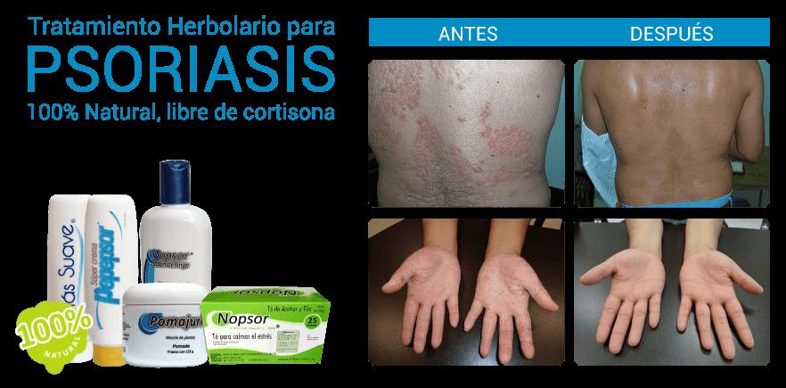 Como arreglar el picor a atopicheskom la dermatitis